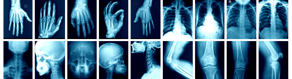 X-Ray services - St Luke's Oxford